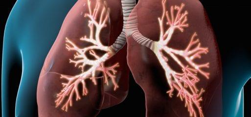 CNZ (COPD netwerk zwolle) netwerkavond
